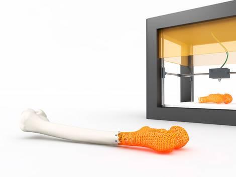 3D-Drucker produziert menschlichen Knochen